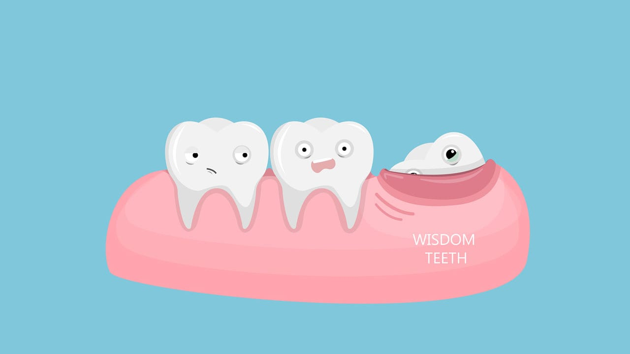 5 Things You Will Want To Know Before Getting Your Wisdom Teeth Pulled